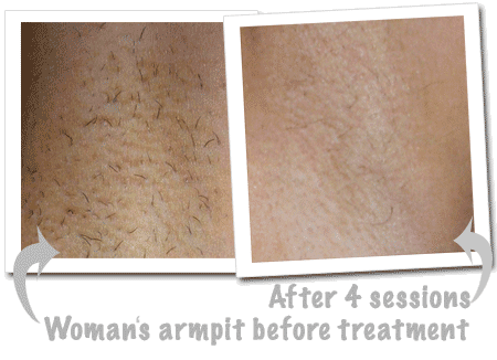 Woman armpit before treatment